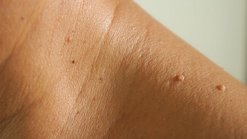 The Best Skin Tag Removal Patches You Can Use At Home