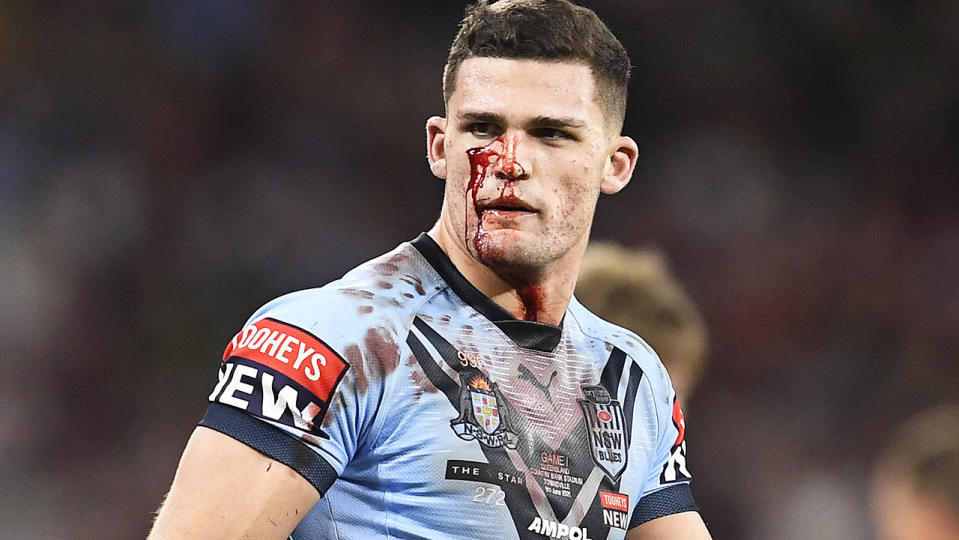 Nathan Cleary wasn't sent from the field for more than 30 minutes despite bleeding from the face.