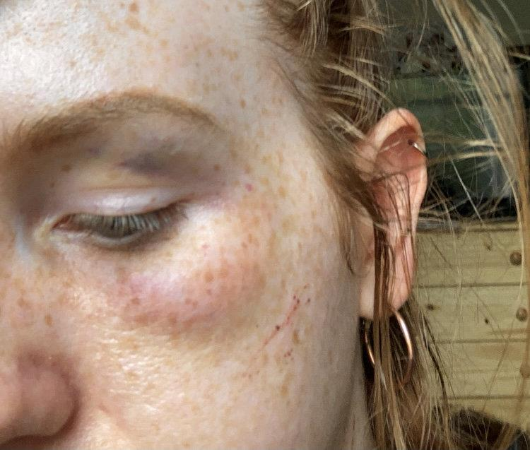 She was assaulted by three men in Castle Park. (SWNS)