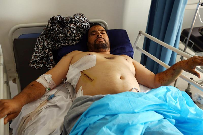 A man lies in a bed at Al-Sabah Hospital in the Libyan capital Tripoli on July 27, 2014 (AFP Photo/Mahmud Turkia)
