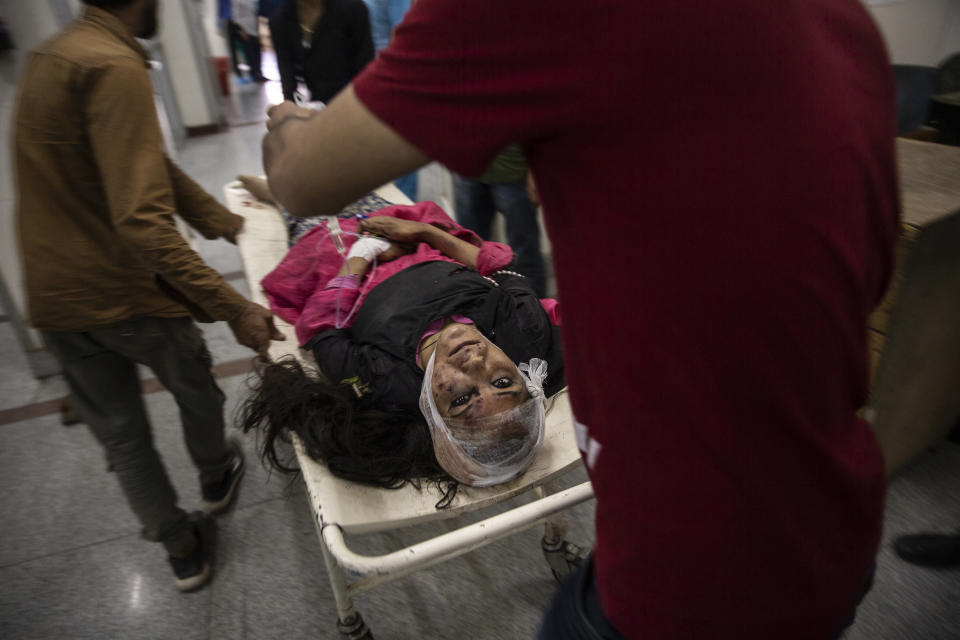 A wounded woman is carried on a stretcher for treatment after she was injured in a bus accident, at a local hospital in Srinagar, Indian controlled Kashmir, June 27, 2019. A minibus carrying students to a picnic fell into a gorge along a Himalayan road in Indian-controlled Kashmir, killing more than 10 and injuring several others. The image was part of a series of photographs by Associated Press photographers which won the 2020 Pulitzer Prize for Feature Photography. (AP Photo/Dar Yasin)