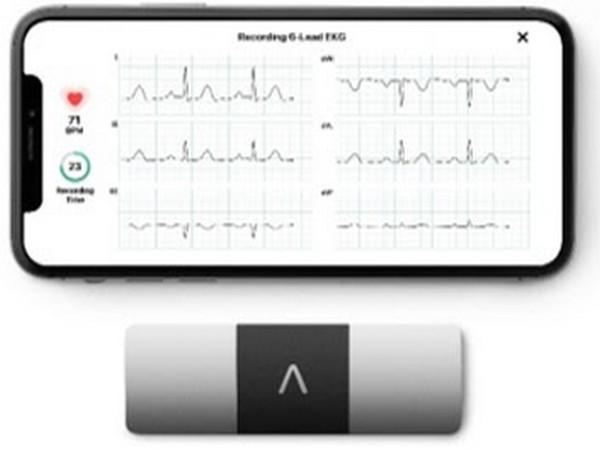 KardiaMobile 6L is the world's only six-lead, FDA-cleared personal ECG