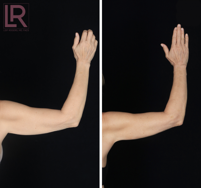 Renuvion before and after arms