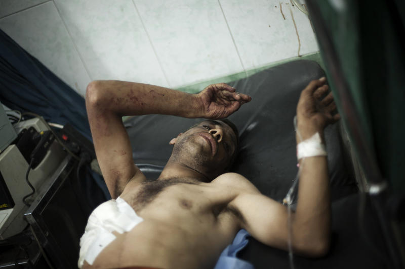 In this Wednesday, Sept. 19, 2012 photo, a man lies in the hospital after being shot by a Syrian Army sniper near his home in Aleppo, Syria. (AP Photo/Manu Brabo)
