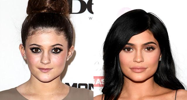 Kylie Jenner shows off her fuller lips. (Photo: Getty Images)