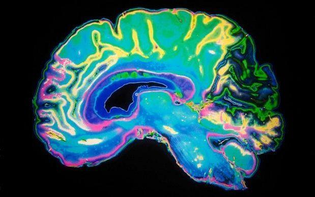 The striatum is key to valuing decent behaviour - PA