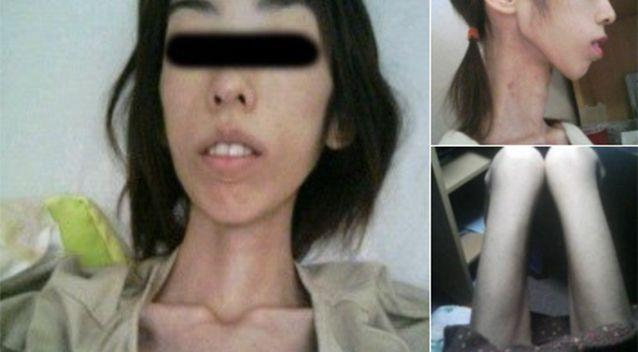 Some social media users were sceptical of the woman's claims but she replied with more harrowing images. Source: Twitter