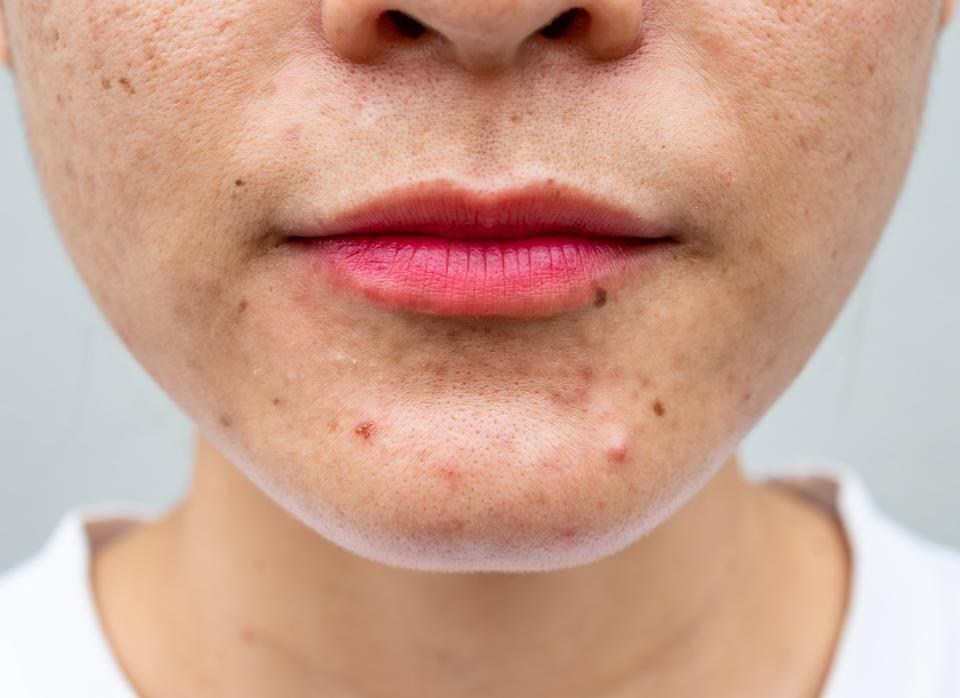 Conceptual of natural problem on woman skin.