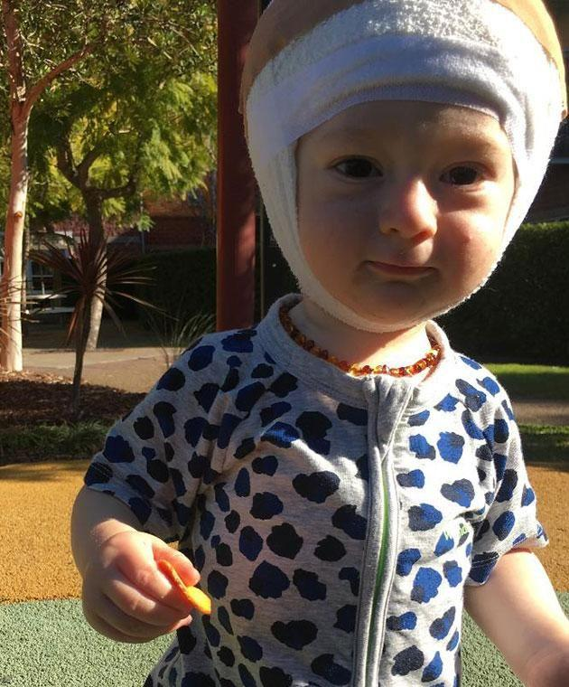 Nixon has had a bandage on his head his whole life. Photo: Supplied