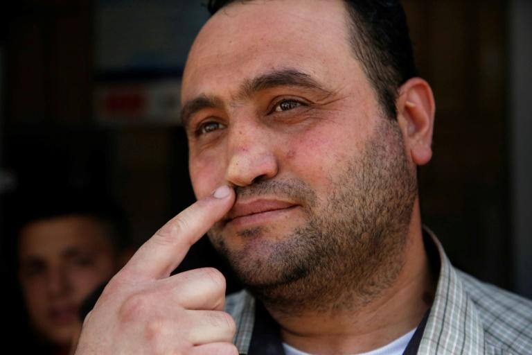 Palestinian Hitler Abu Hamad, deputy head at a West Bank school, points at his nose, which was allegedly broken when he was 15 by an Israeli army officer who asked him his name