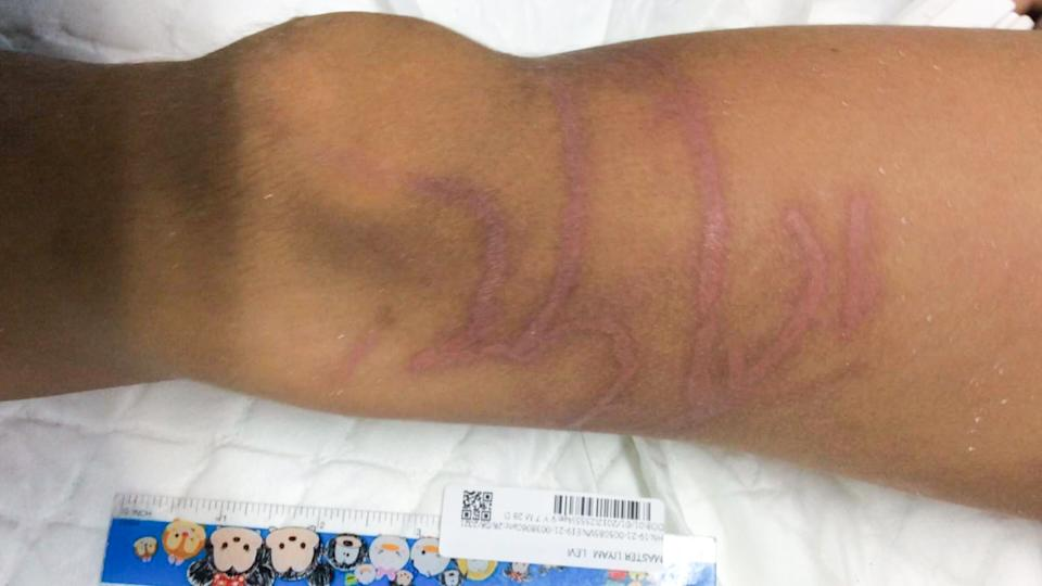 The jellyfish injuries on the boy's body. Source: Viral Press/Australscope