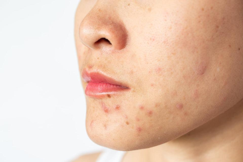 """<p>In the beauty world, maskne was one of the biggest talking points of the year. """"Many people who never thought twice about the health of their skin or never had 'problem skin' are noting increased breakouts and skin <a href=""""https://www.popsugar.com/beauty/soothe-irritated-skin-from-protective-face-masks-47404977"""" class=""""link rapid-noclick-resp"""" rel=""""nofollow noopener"""" target=""""_blank"""" data-ylk=""""slk:irritation with daily mask-wearing"""">irritation with daily mask-wearing</a>,"""" said Dr. Ramanadham. Because of this, many sought-after medical-grade treatments and topicals will be largely focused on reducing active breakouts and treating leftover hyperpigmentation and scarring.</p>"""