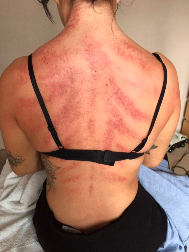 The shocking scratches are actually a muscle injury called petechia. Photo: Facebook