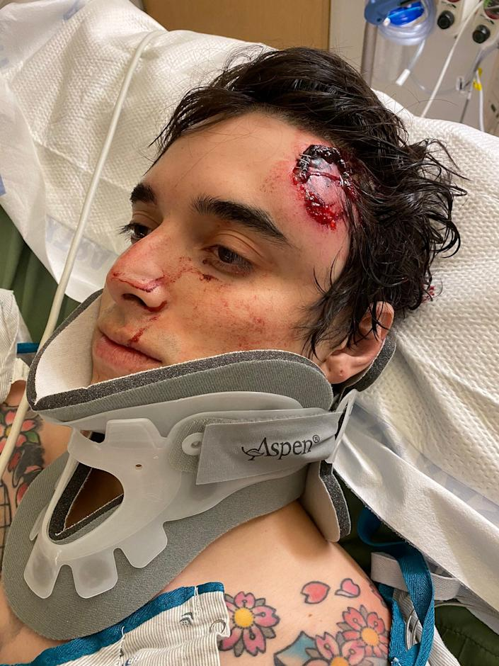 C.J. Montano, in the hospital after attending a Los Angeles protest, where the police shot a projectile at his head. The Marine was hospitalized in the intensive care unit due to bleeding in his brain. (Courtesy of CJ Montano)