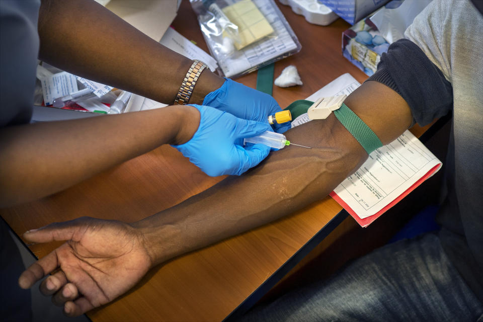 CORRECTS NURSE DRAWS BLOOD FROM COVID-19 TEST VACCINE PATIENT- Blood is drawn from a clinical trials patient patient for the AstraZeneca test vaccine at the University of Witwatersrand' Soweto's Chris Sani Baragwanath Hospital facility outside Johannesburg Nov. 30, 2020. South Africa is scrambling to come up with a new vaccination strategy to combat COVID-19 following its suspension of the rollout of the AstraZeneca vaccine, after a preliminary test showed weak results in protecting the variant dominant in this country. (AP Photo/Jerome Delay)