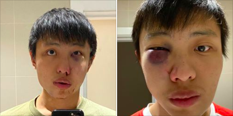 Jonathan Mok, 23, was assaulted in February along Oxford Street in London. (Facebook/Jonathan Mok)