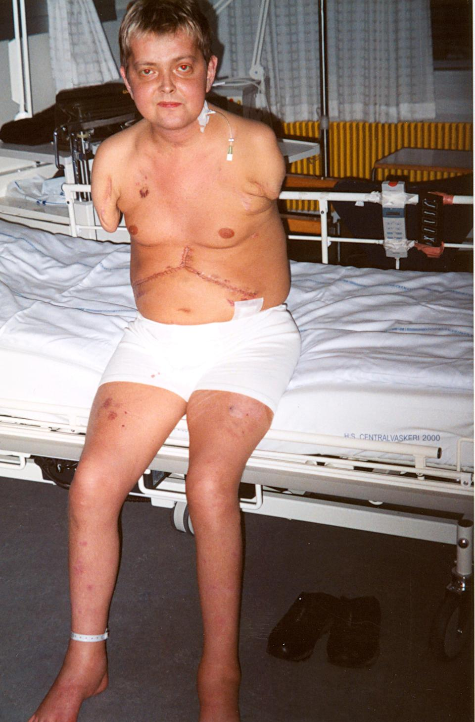 The father-of-two yearned for his missing arms for years. (SWNS)