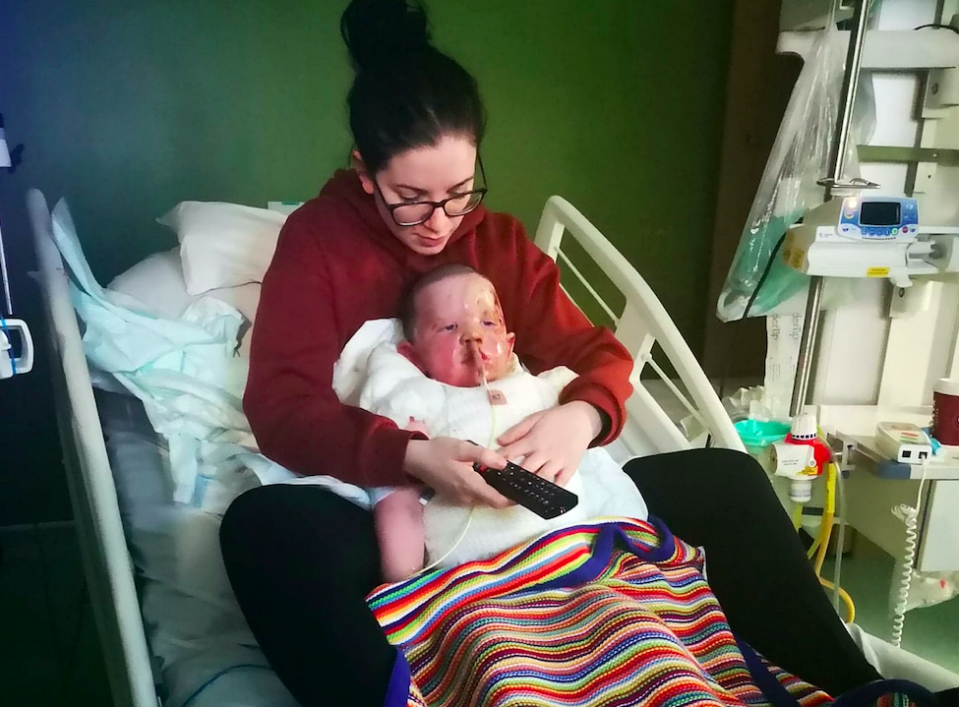 Harley's mum Erin sits with him in hospital as he recovered from his injuries. (SWNS)