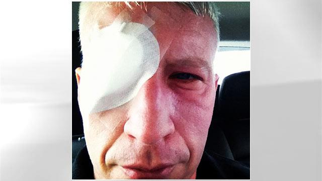 Anderson Cooper Recovering from Sunburn