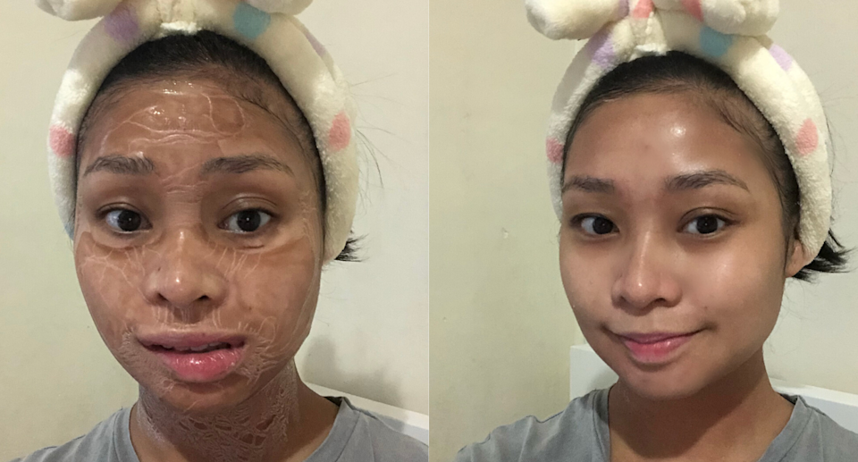 All-In-On Facial