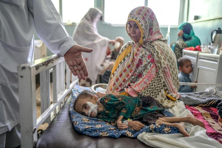 A child suffering from malnutrition receives treatment at the Mirwais hospital in Kandahar in southern Afghanistan (AFP/Bulent KILIC)