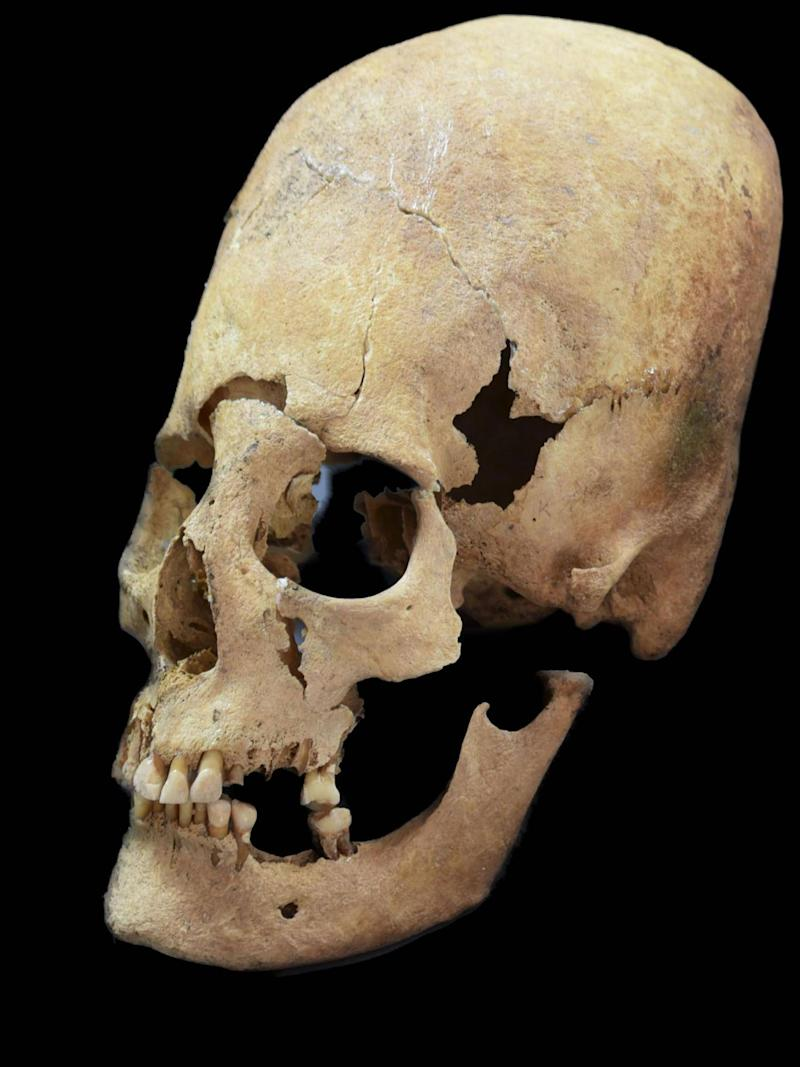 Artificially deformed female skull from Altenerding, an Earyl Medieavel site in Bavaria (State collection for Anthropology and Palaeoanatomy Munich via AP)