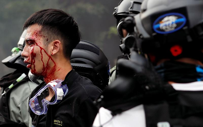 Police detain protesters who attempt to leave the campus of Hong Kong Polytechnic University (PolyU) during clashes with police in Hong Kong, China Nov. 18, 2019. (Photo: Tyrone Siu/Reuters)