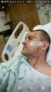man in hospital with scars on face and neck