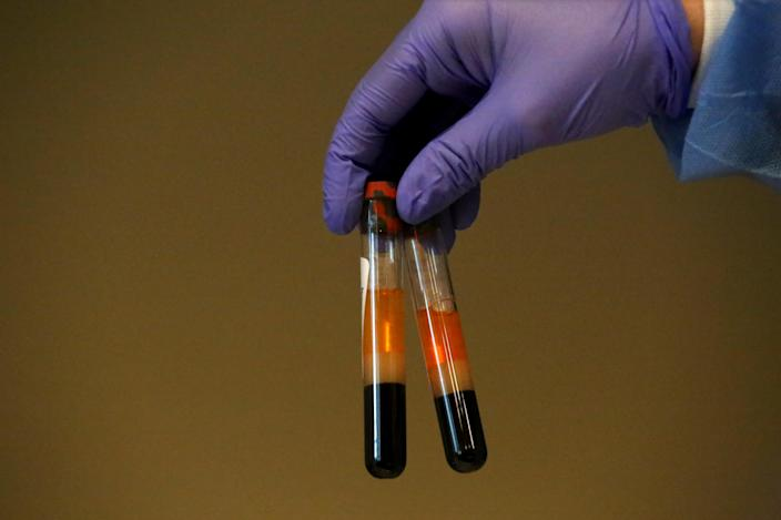 Samples from people who were tested for coronavirus antibodies at a health center in Spring Valley, N.Y. (Yana Paskova/Getty Images)