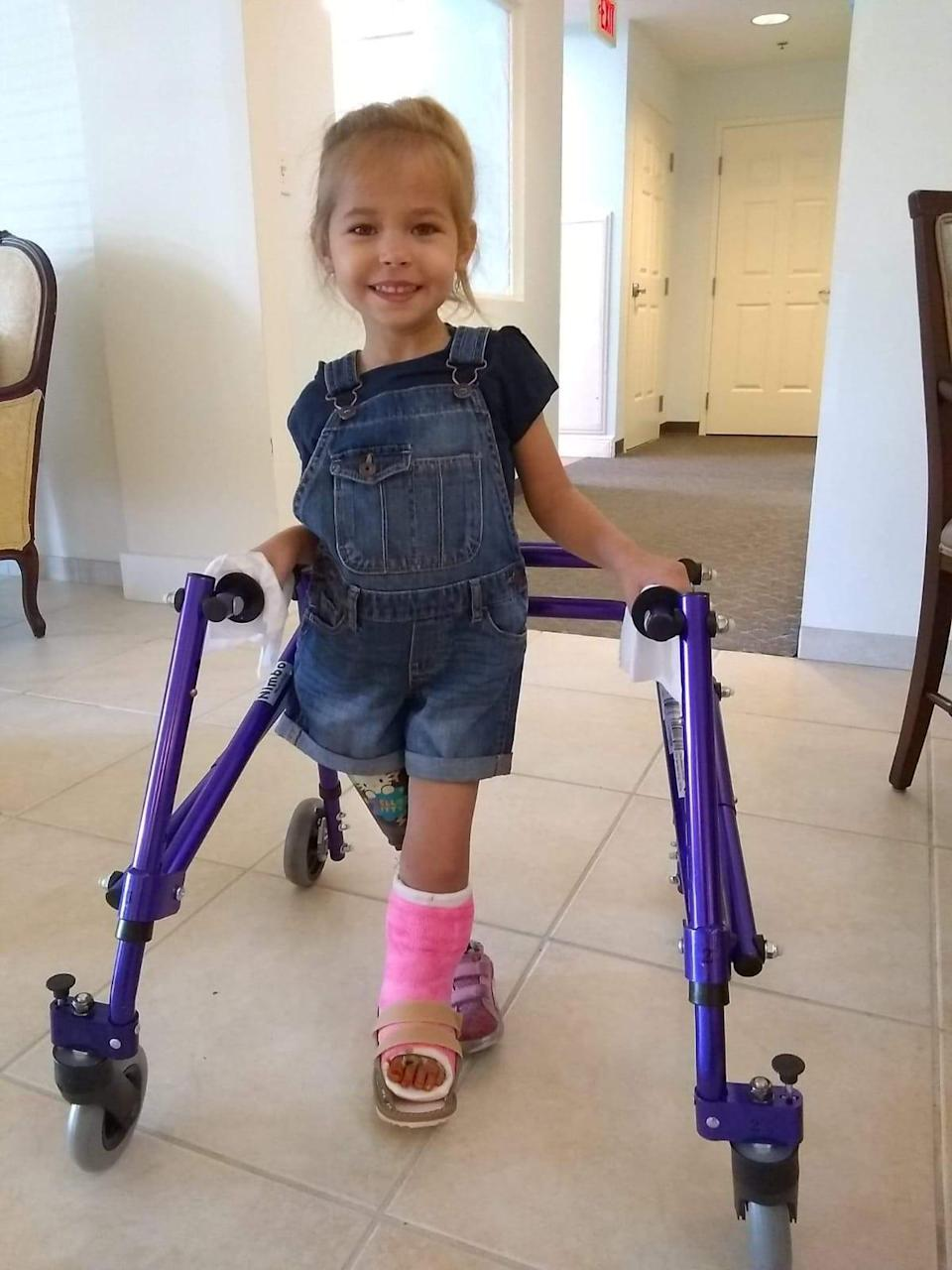 The toddler can now walk, run and play thanks to the life-changing surgery [Photo: SWNS]