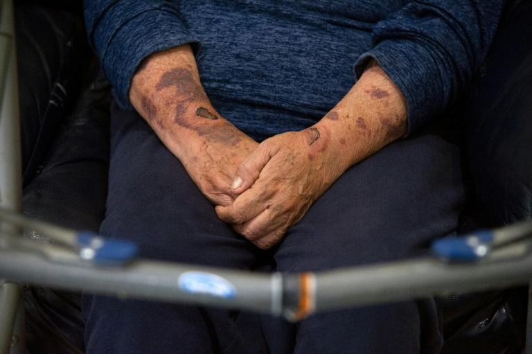 Marisela Oliva has bruises on her arms and uses a walking frame because of abuse by her ex-partner