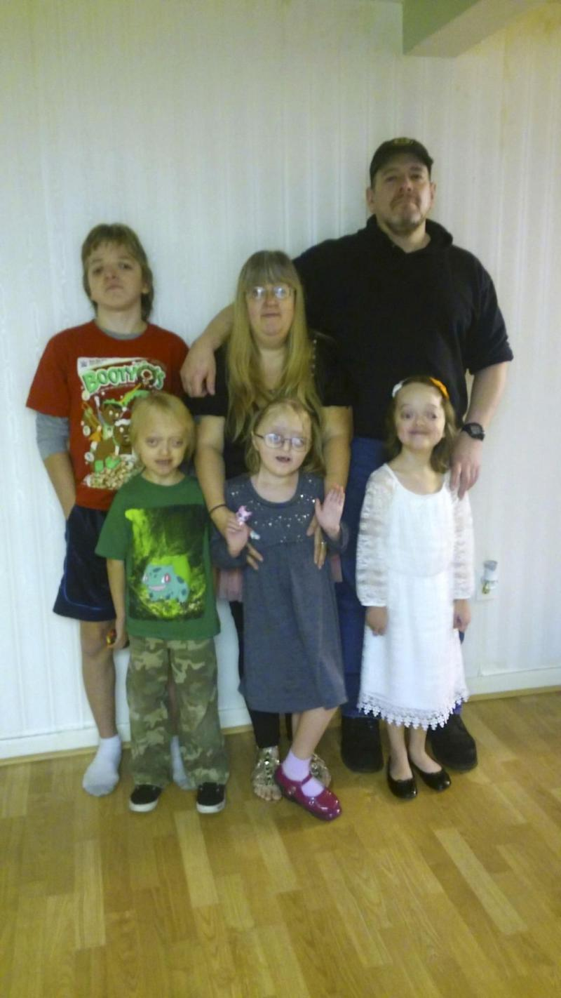 Bobbie-Jo and all four of her children were born with Crouzon Syndrome. Photo: Caters News