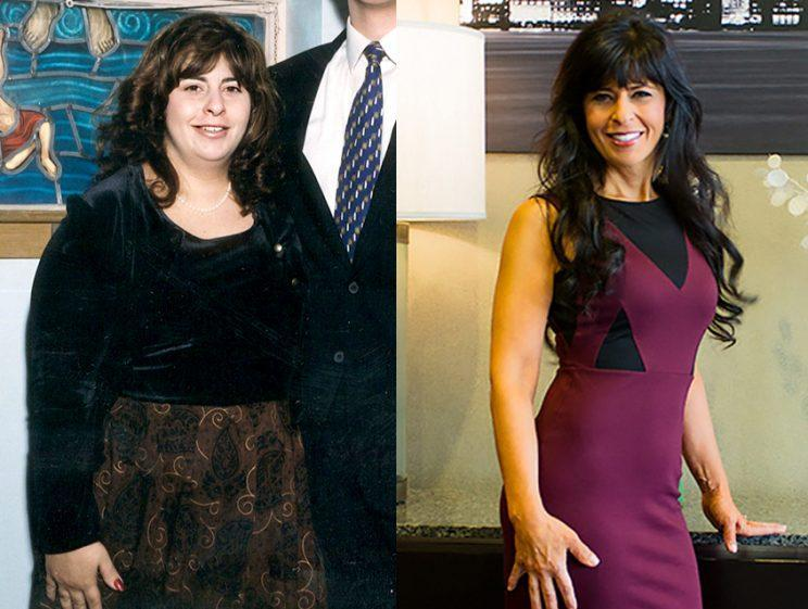 Charlene Bazarian lost 93 pounds.