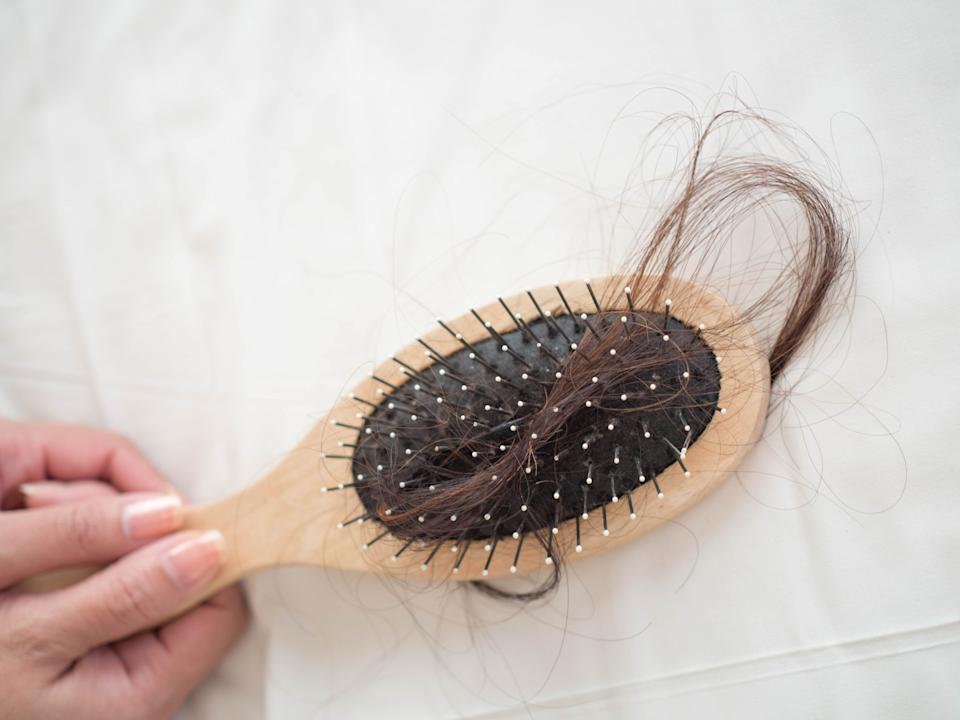 Many women suffer from postpartum hair loss. (Getty Images)
