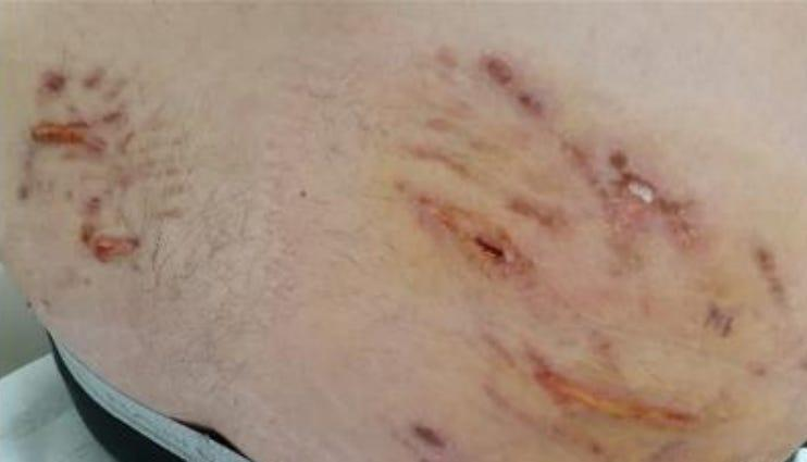 A photo of Raymond Rubio's injuries during a January 2020 arrest by Visalia police.