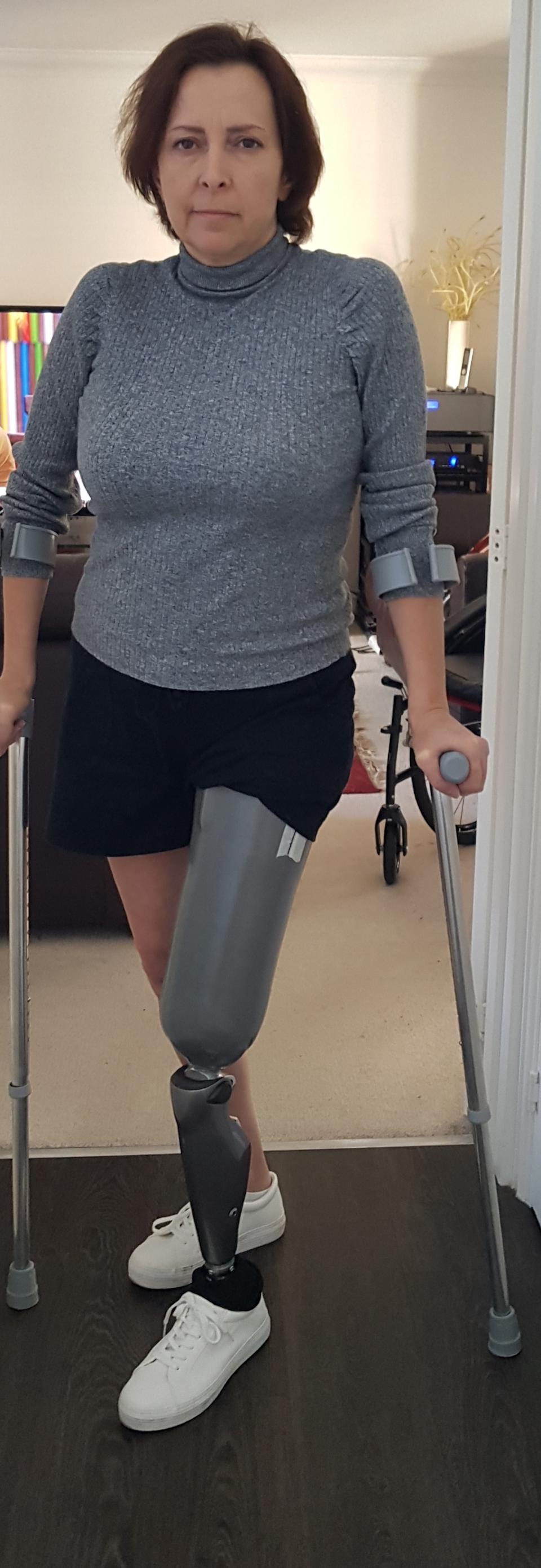 Helen Way, 49, received her prosthetic leg in Oct 2020. (Caters)