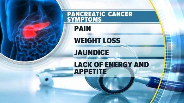 VIDEO: What to know about pancreatic cancer (ABCNews.com)