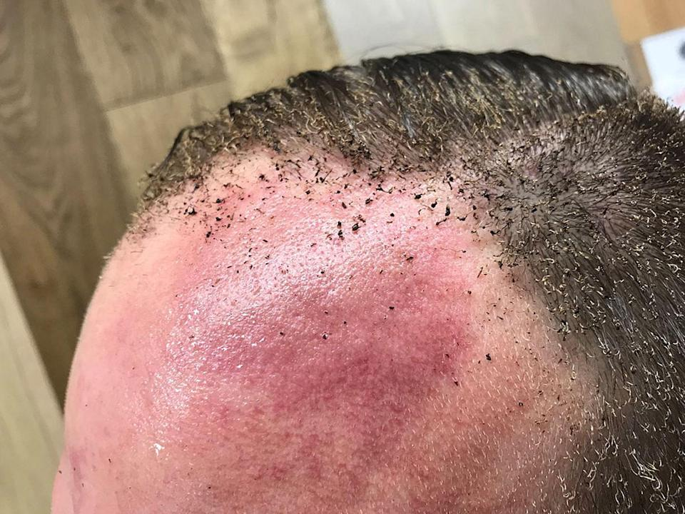 <p>Eyewitness Peter Crowley tweeted this image of himself minutes after the explosion – where the blast from the Tube carriage singed part of his hair off. (PA/Twitter/Peter Crowley) </p>