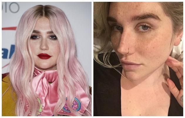 Kesha has also stripped back her full face of make-up and revealed a more natural side of herself. Source: Getty