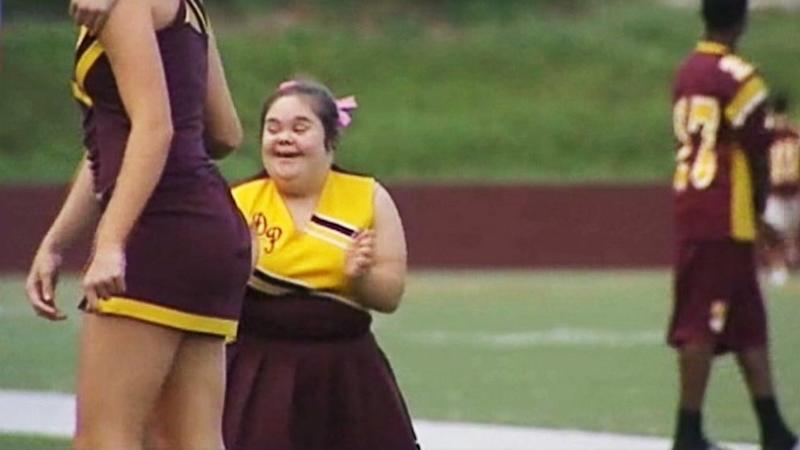Cheerleader With Down Syndrome Rejoins Squad After Safety Debate (ABC News)