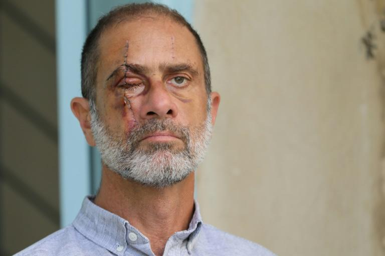'Vision from hell': Losing an eye to the Beirut blast