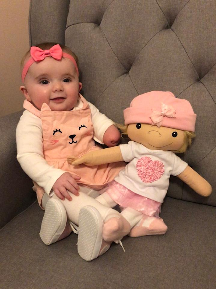 """At Emma Grassi's 20-week ultrasound, Brian Grassi and his wife had learned a piece of fibrous tissue was wrapped around their daughter's developing left arm, acting like a tourniquet and preventing growth below her elbow.  Grassi, 43, says he """"wept like a baby"""" when Jandrisevits gifted him and his wife a doll missing part of its lower arm several months before the birth of Emma last October.  """"For me as her father,"""" says Grassi, """"it's amazing to see a doll that represents my daughter with her limb difference."""""""