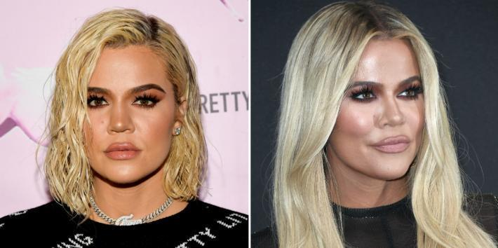 Did Khloé Kardashian Get A Nose Job? Before/After Photos And The Truth About The Plastic Surgery Rumors
