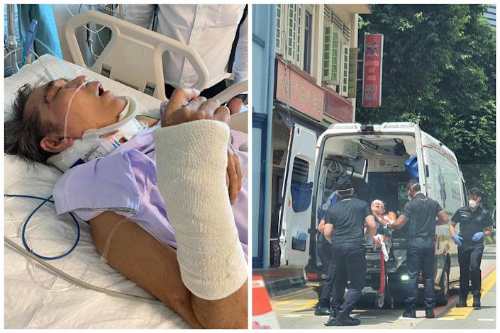 A bus commuter (Mr Siah) sustained multiple injuries after Bus Service 175 applied emergency brakes to avoid an accident at North Bridge Road on 8 September 2021. (PHOTOS: Siah Hwan Ling/Facebook)
