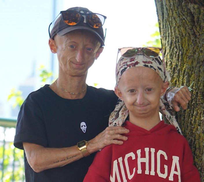 Michiel, 21, and Amber, 13, both have the genetic disorder progeria.
