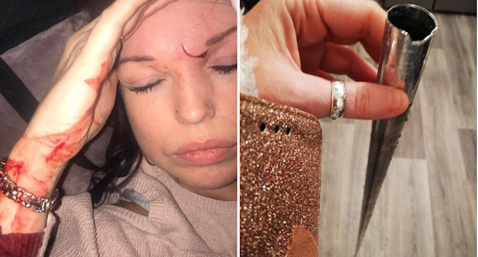 Mum Clarissa Clary suffered an injury just centimetres from her eye when a toy she had bought for her son popped open