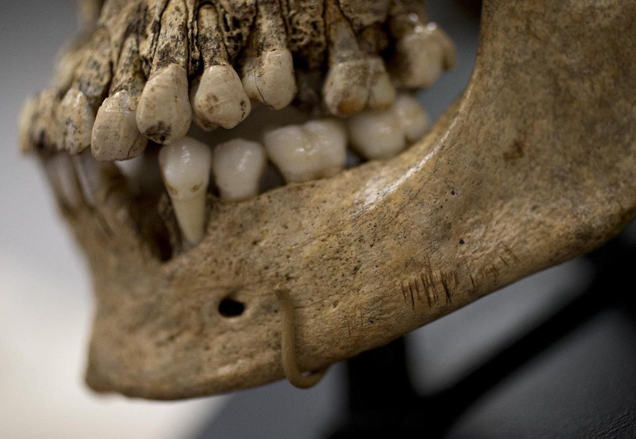 "Numerous small knife cuts and punctures in the mandible of ""Jane of Jamestown"" are seen during a news conference at the Smithsonian's National Museum of Natural History in Washington, Wednesday, May 1, 2013. Scientists announced during the news conference that they have found the first solid archaeological evidence that some of the earliest American colonists at Jamestown, Va., survived harsh conditions by turning to cannibalism presenting the discovery of the bones of a 14-year-old girl, ""Jane"" that show clear signs that she was cannibalized. (AP Photo/Carolyn Kaster)"
