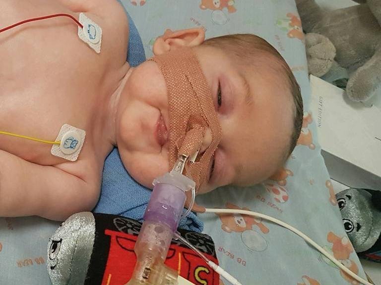 Eight-month-old Charlie Gard has a form of mitochondrial disease and is ventilator-dependent: Facebook/Charliegardsfight