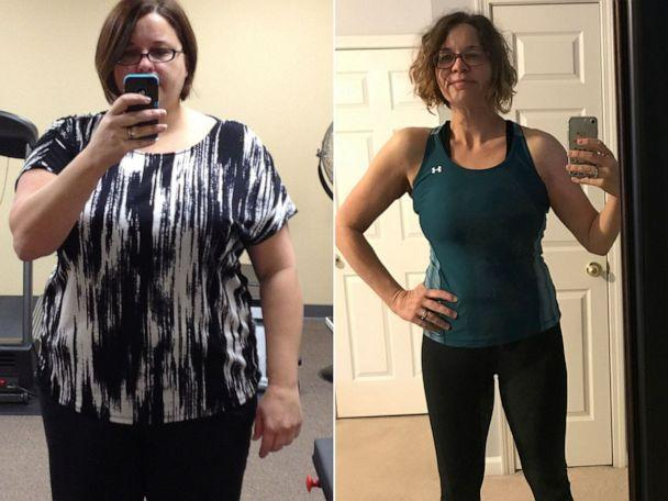 PHOTO: Laura Rosenthal, of Tennessee, is pictured before and after her weight loss. (Courtesy Laura Rosenthal)