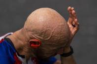 """Tom Davis wipes sweat from his forehead after riding his bicycle as part of his daily training in Fremont, Ind., Tuesday, Aug. 17, 2021. If he hadn't lost his leg, """"I would never have grown into the person I am now,"""" he said. """"Not even just racing a bike or whatever, but as a human being and as a husband and as a dad. ... I wouldn't give all that back. Just to walk?"""" (AP Photo/Emilio Morenatti)"""